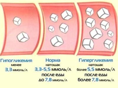 Симптомы патологии