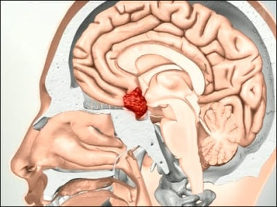 Доброкачественные и злокачественные опухоли гипофиза