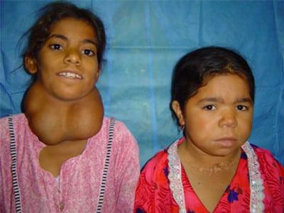 Дифузний токсичний зоб щитовидної залози 1,2,3 ступеня: симптоми і лікування » журнал здоров'я iHealth 2