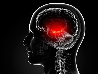 Эктопический АКТГ-синдром